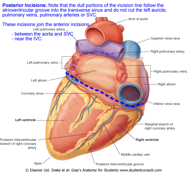 Lab 5: Heart Transplant/Coronary Circulation