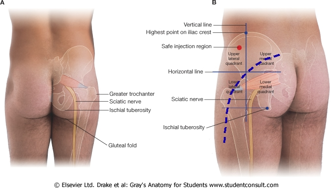 Image Gallery Hip Anatomy Tendons